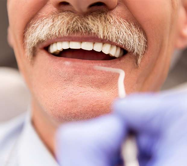 West Palm Beach Adjusting to New Dentures