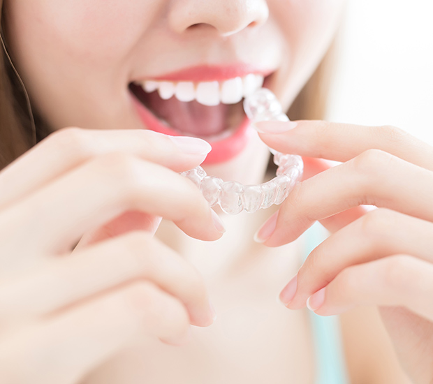 West Palm Beach Alternative to Braces for Teens
