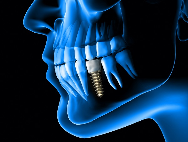 Benefits Of A Dental Implant To Replace A Missing Tooth