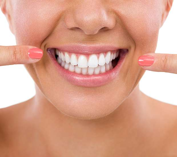 West Palm Beach What Is Gum Contouring & Reshaping